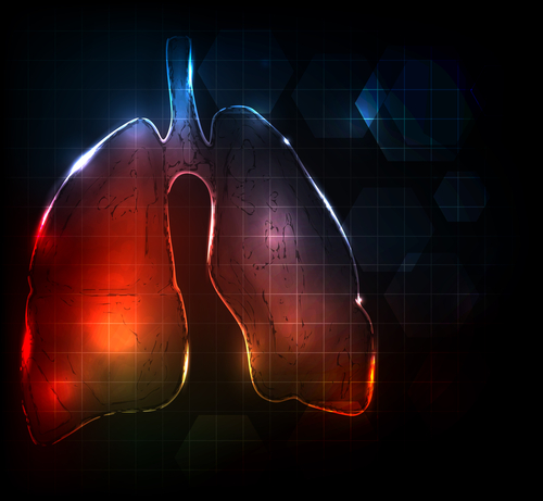 COPD flares and stroke