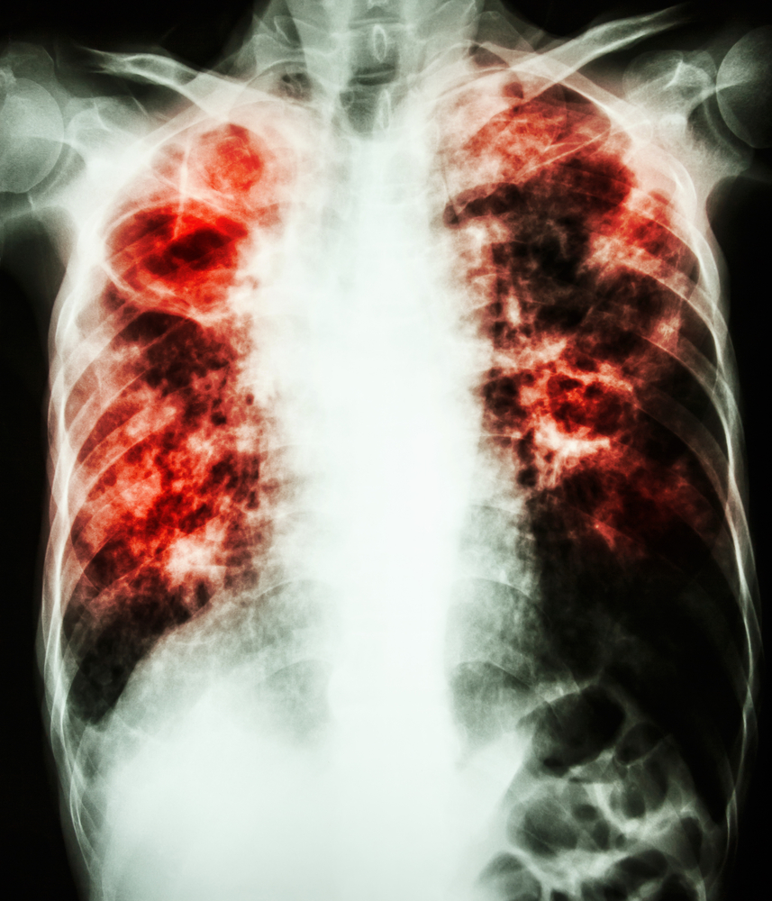Respreeza® for Emphysema with A1-PI deficiency now Approved in European Union