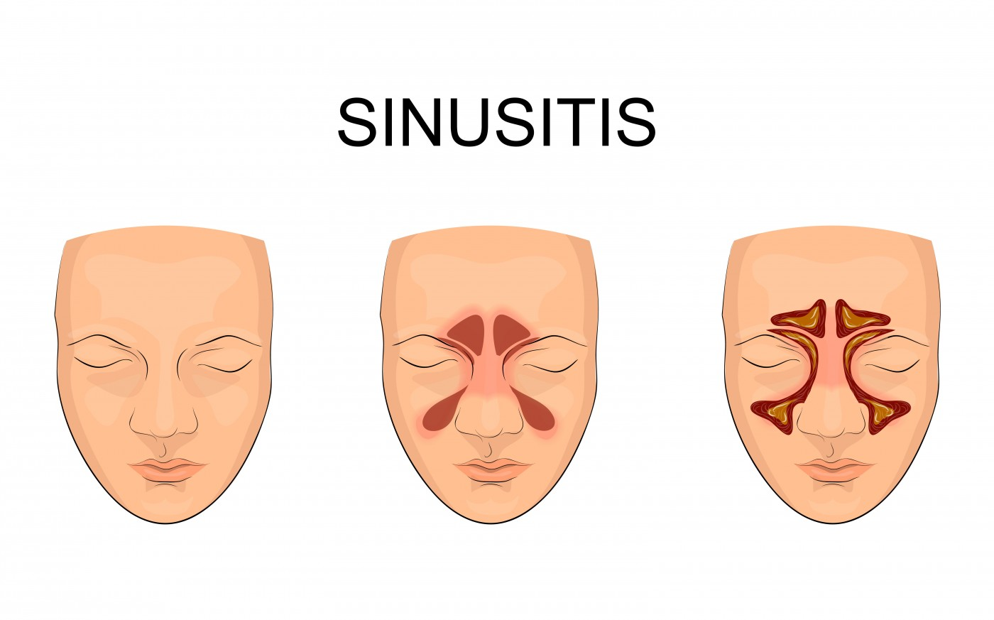 Chronic inflammation of the sinus cavities is linked to bronchiectasis in COPD.