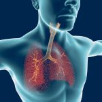e-cigs and lung disease
