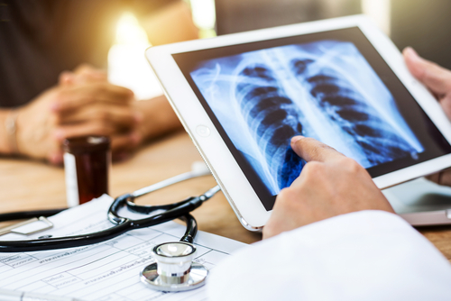 Phase 3 COPD Trial Shows Investigational PT010 Improves Lung Function