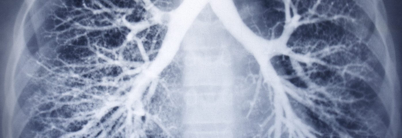 Novel Non-invasive Imaging Technique May Help Detect Lung Changes Earlier in COPD Patients, Study Says