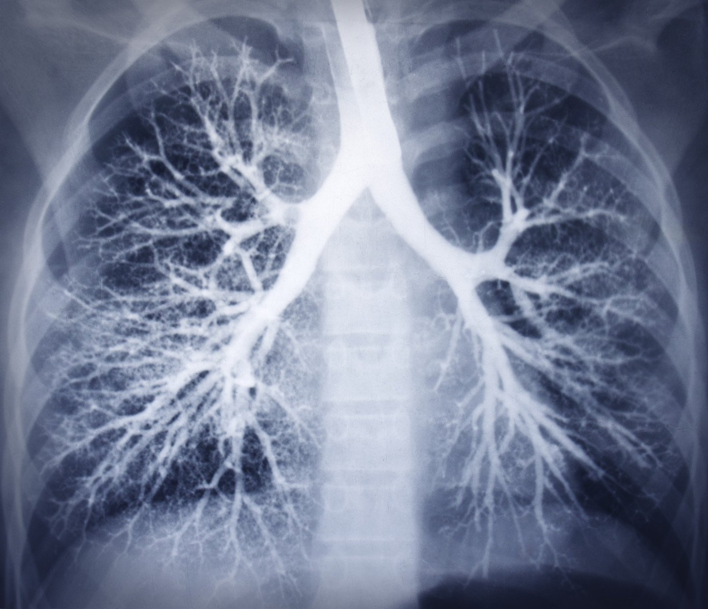 lung size and airways