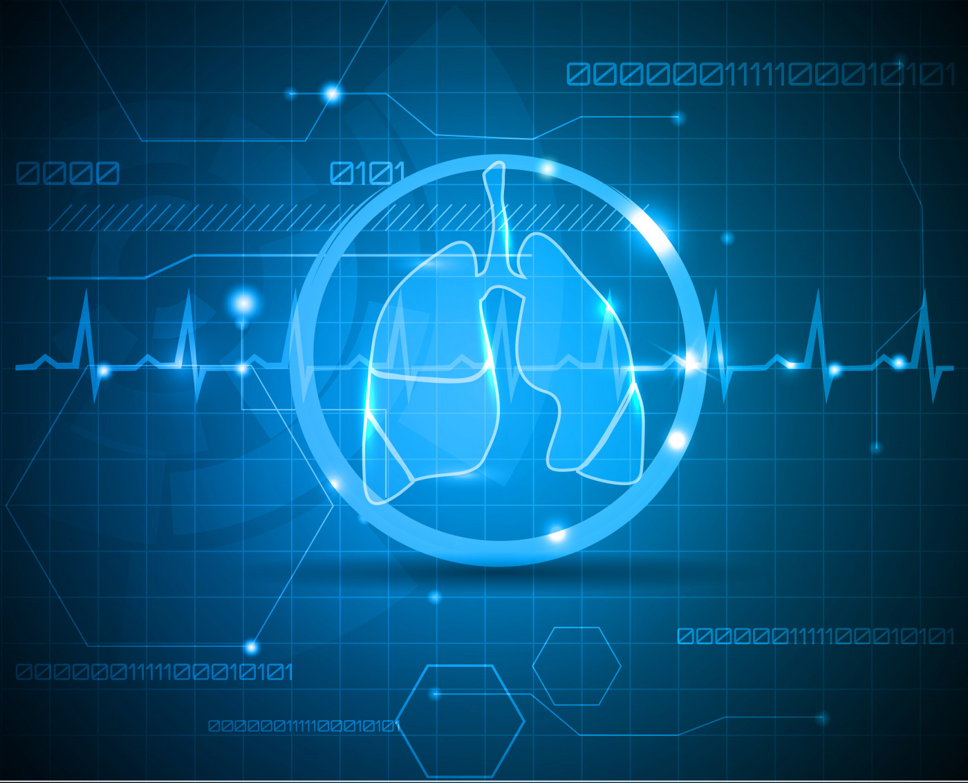 SVS trial and lung function