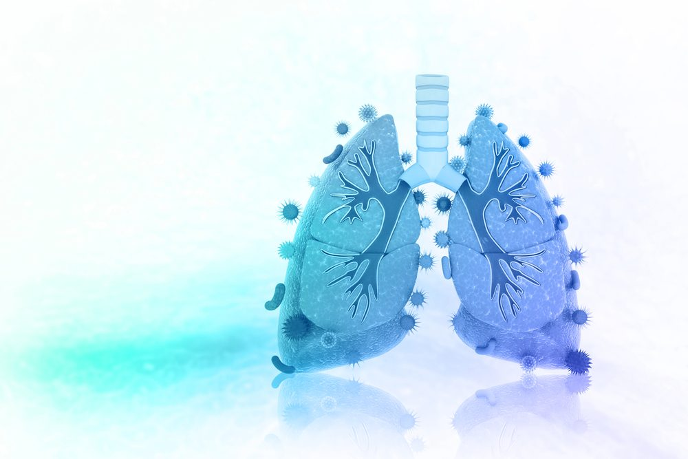 Expansion of Unusual Stem Cell Subsets May Drive COPD Progression, Study Suggests